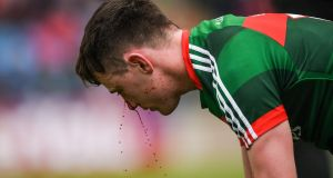 Mayo's Diarmuid O'Connor after receiving a cut to his face during the Connacht championship quarter-final against Sligo. at MacHale Park, Castlebar. Photograph: Stephen McCarthy/Sportsfile/Getty