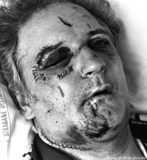 Jim Dixon, Enniskillen bomb victim in hospital after the Poppy Day explosion in 1987 which killed 12 people.  Photograph: Trevor McBride