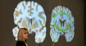 Dr. Ann McKee announces her findings on her examination of the brain of Hernandez. Photo: John Tlumacki/The Boston Globe via Getty Images