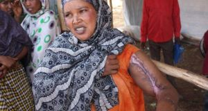 At a camp for displaced Somalis in Kolenchi, this formerly prosperous business woman from Aweday was burnt during the riot and lost everything. Photograph: James Jeffrey