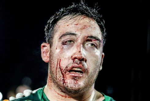 Connacht's Denis Buckley with a bloodied face after the game against Munster, Guinness PRO14, Sportsground, Galway in November.  Photograph: Dan Sheridan / INPHO