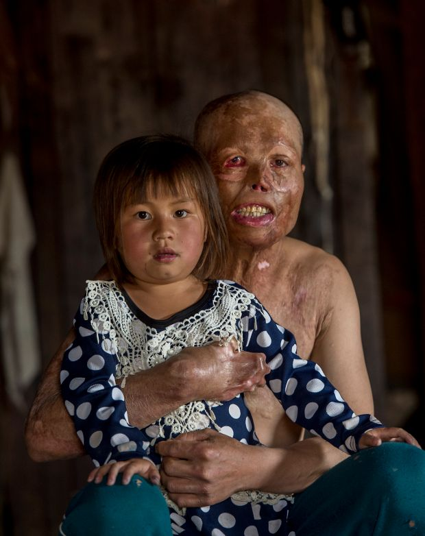 Yeyang Yang aged 31 with his daughter Syya aged 6 photographed at their home in Banxang village, Phonsavan, Laos. He was buring rubbish when the heat of the fire ignited a UXO in the ground and exploded. Yeyang spent 8 months in hospital and still has to undergo further surgery. Photograph: Brenda Fitzsimons / The Irish Times