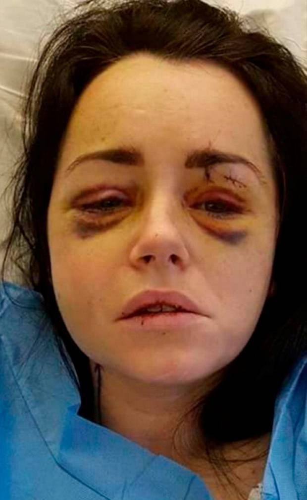 Domestic Abuse I Dont Think People Realise The Full Horror Of It