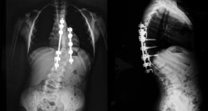 An x-ray taken of a person with scoliosis. Tallaght Hospital has been accused in the Dáil of engaging in an 'arse covering exercise' by confirming surgery for a scoliosis patient only after being contacted by the Minister for Health. Image: iStock.
