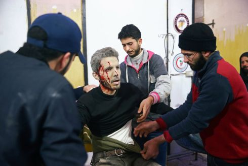THE WAR DRAGS ON: An injured man is treated at a medical point in the besieged town of Douma, Eastern Ghouta, Damascus, Syria. The government has launched a new offensive against rebels in the area. Photograph: Bassam Khabieh/Reuters