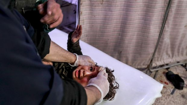 An injured child receives treatment following bombings on several areas of eastern Ghouta, at a hospital in Douma, Syria. Photograph: Mohammed Badra/EPA