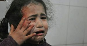 A photo released on Wednesday, provided by the Syrian anti-government activist group Ghouta Media Center and authenticated based on its contents and other AP agency reporting, shows a young Syrian girl who was wounded during airstrikes and shelling by Syrian government forces. Photograph: Ghouta Media Center via AP