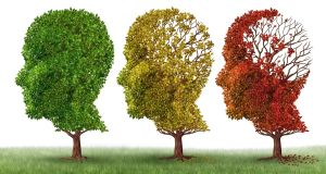 For treatments to be successful, early stages preceding full onset of Alzheimer's need to be targeted. Illustration: iStock