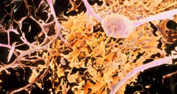 Multiple sclerosis. A coloured scanning electron micrograph of a microglial cell (orange) ingesting oligodendrocyte cells (pink, branched) in nerve tissue. This  process is thought to occur in multiple sclerosis (MS). Photograph. Getty Images