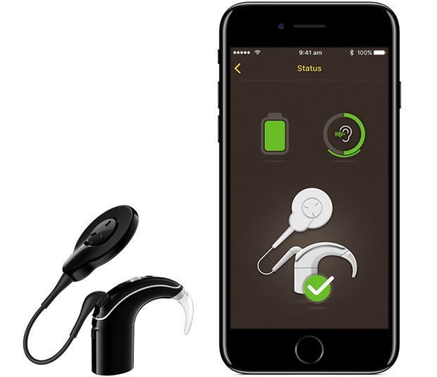 The Nucleus 7, the first made for iPhone Cochlear Implant Sound Processor.