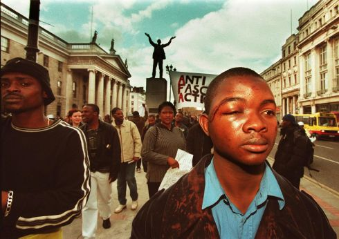 Mr Paul Abayomi, who was attacked in Summerhill, Dublin taking part in a anti-racist demonstration by refugees on O'Connell Street in Dublin. PHOTOGRAPH - FRANK MILLER 20.4.00