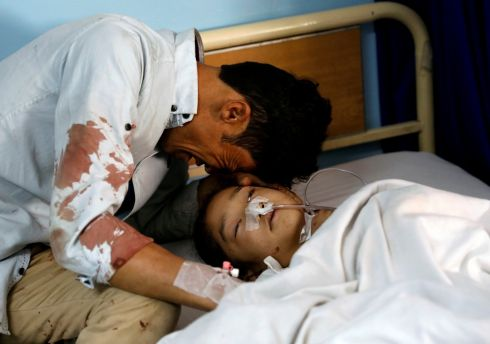 KABUL ATTACK: A man cries beside an injured girl at a hospital after a suicide attack in Kabul, Afghanistan. Photograph: Mohammad Ismail/Reuters