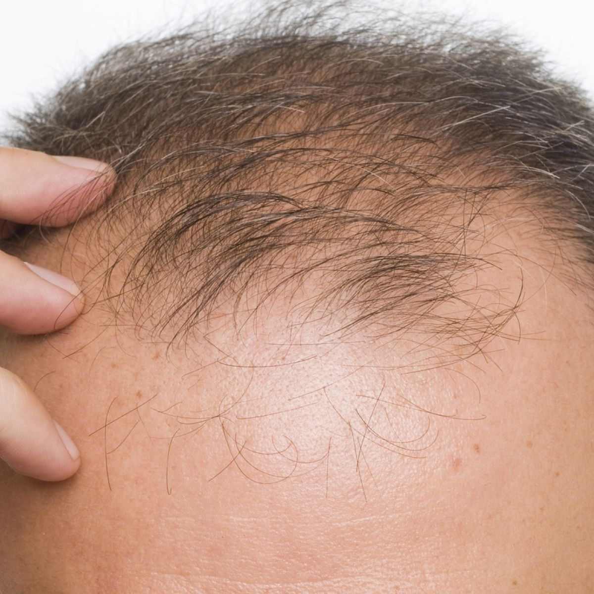 Beating baldness: tips and ways to avoid hair loss