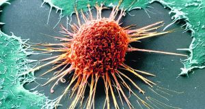 "A cervical cancer cell. According to the US National Cancer Institute, ""for women age 30 and older, pap and HPV co-testing is less likely to miss an abnormality than pap testing alone""."