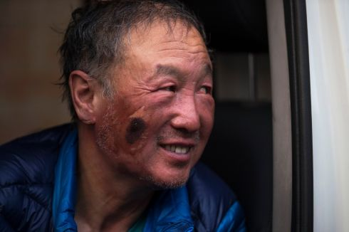 INCREDIBLE FEAT: Chinese double amputee climber Xia Boyu arrives to the Ciwec hospital after returning from Everest base camp in Kathmadu, Nepal. He is the first double amputee to reach the summit from Nepal side. Photograph: Narendra Shrestha/EPA