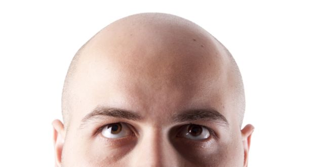 Sean Moncrieff: 'It could be that baldness simply equates to