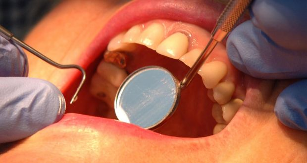Use of mercury-based dental fillings to be phased out