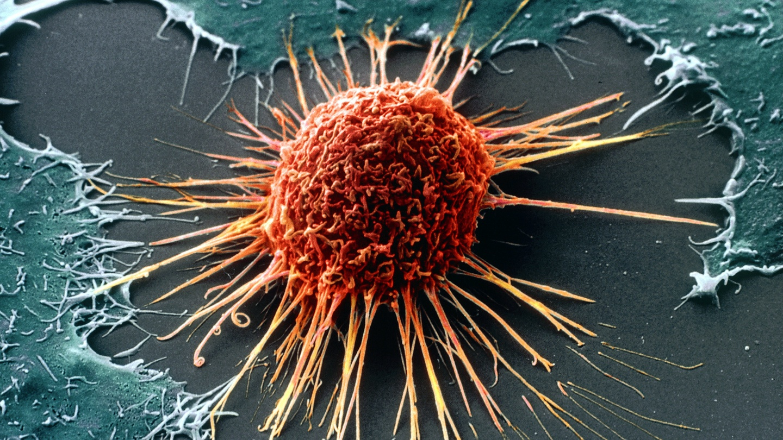 Human papillomavirus in dutch, Papiloamele - tratează-le rapid și eficient! » Bio Terra Med