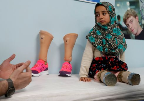 ISTANBUL SNAPSHOT: Maya Meri (8) waits at a prosthetic centre in Istanbul, Turkey. Photograph: Osman Orsal/Reuters