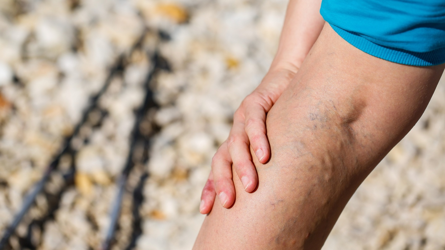 10 things you didn't know about varicose veins