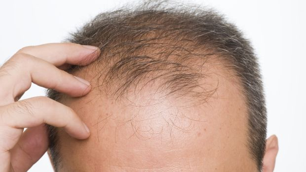 Bald truth: There is help for hair loss