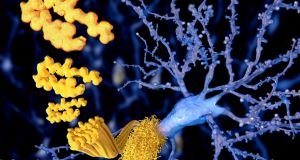 In Alzheimer's disease, it's thought the brain's ability to remove amyloid beta becomes impaired, and the amyloid beta builds up in a soluble form in the fluid of the brain. Photograph: iStock