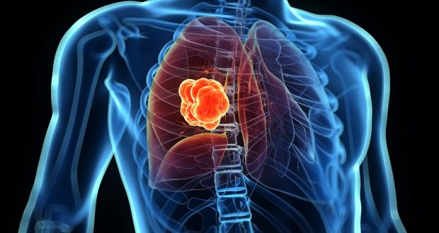 New drug approved for advanced lung cancer by HSE