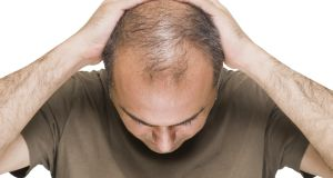 Hair loss is regularly sited as one of the most stressful things that can happen to men, but most of them  manage their baldness in a way that allows them to keep their self-worth intact.