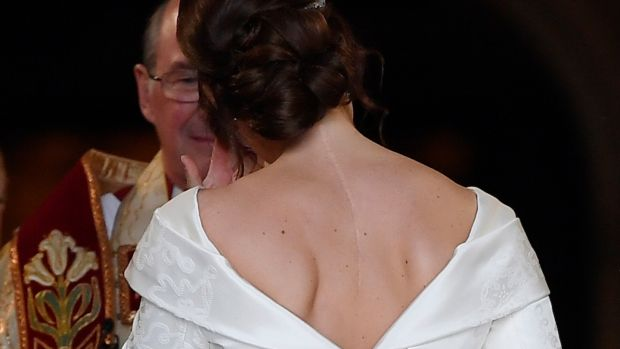 Princess Eugenie, with the scar from her surgery for scoliosis to treat a curvature of the spine at the age of 12 visible, as she enters St George's Chapel for her wedding to. Photograph: Toby Melville/PA Wire