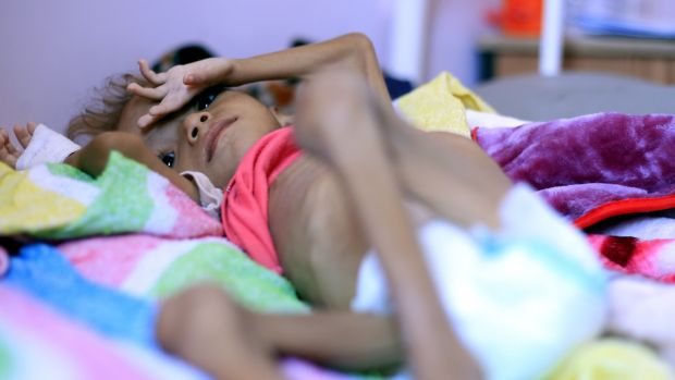 A malnourished child receives treatment in Sanaa, Yemen in early October. Photograph: Yahya Arhab/EPA