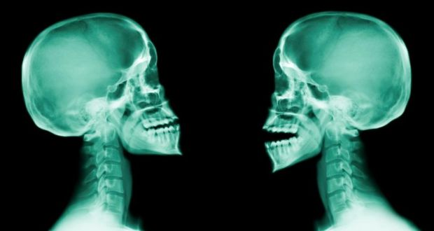 Whiplash Victims Awarded Average Of 20 000 For Injuries