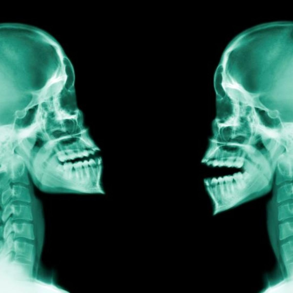 Whiplash victims awarded average of €20,000 for injuries