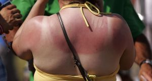 There was  a sharp rise in skin cancer deaths among Irish women between 1985 and 2015, against international trends.  File Photograph: Yui Mok/PA Wire