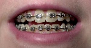 Braces no longer a familiar aspect of adolescence as dentists and orthodontists see the adult's mouth as just as malleable as the child's