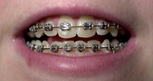 Why are so many adults having braces put on their teeth?