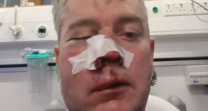 Daniel Sweeney was hospitalised when he was attacked after a match.