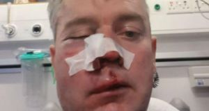 Referee Daniel Sweeney was assaulted after a match in Horseleap, on the Offaly/Westmeath border, between Horseleap United and Mullingar Town. His jaw was broken in two places, his eye socket was fractured and he had to get multiple stitches in his nose.