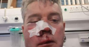 Referee Daniel Sweeney in hospital following the attack.