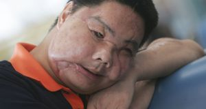 Li Guoxing, whose face was disfigured  by a bear, received the world's second face transplant in China in 2006. Photograph: China Photos/Getty Images