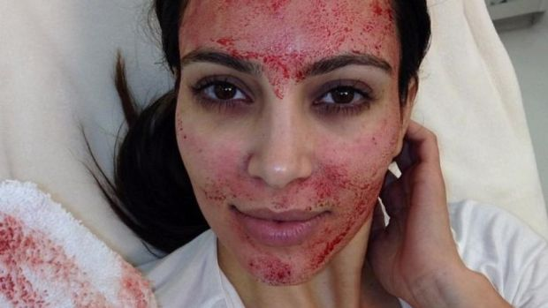 "Kim Kardashian after her ""vampire facial"""