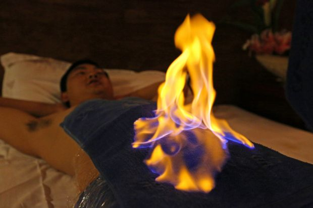 Huo liao: a man has a fire treatment in China. Photograph: VCG via Getty
