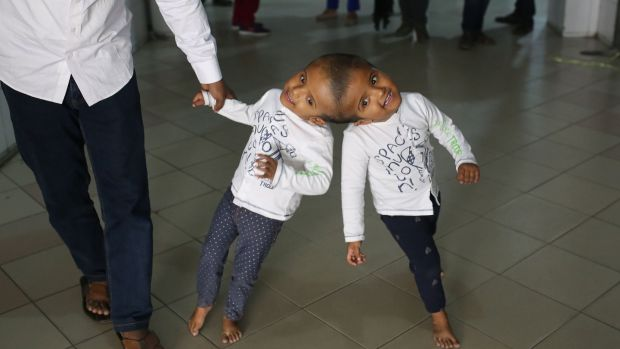 Conjoined twins Rabeya and Rukaiya, from Bangladesh, with their father Rafiqul Islam. The two-year-old girls are in Hungary for treatment, and are expected to be seperated in a series of surgeries to take place in Dhaka. Photograph: Rehman Asad/AFP/Getty Images
