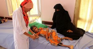 Fatima Hadi, a 12-year-old displaced Yemeni girl suffering from acute malnutrition, is treated at a hospital in Yemen's northwestern Hajjah province. Photograph:   Essa Ahmed / AFP