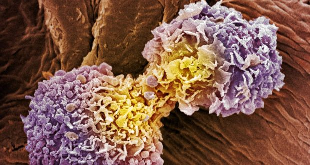 Israeli cancer treatment could be something special