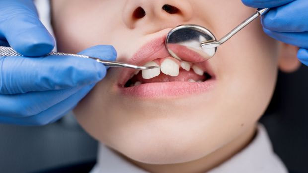 Some of the patients affected may have to be recalled well over a decade after their orthodontic work was performed, the HSE has indicated. Photograph: iStock