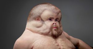 "Graham, by Patricia Piccinini (Australia): what would a human, ""perfectly"" enhanced to survive a car crash look like?"