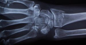 An X-ray of a hand. Allianz Ireland reported 48 cases of suspected fraud to the Garda since June 2018, out of 5,000 claims. Photograph: Thomas Peter