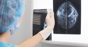 The ESRI looked at the uptake of breast cancer screening in middle to older-aged women as well as prostate cancer screening in men. Photograph: iStock