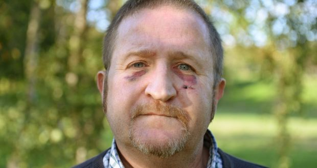 Gardaí treating attack on gay man as a hate crime