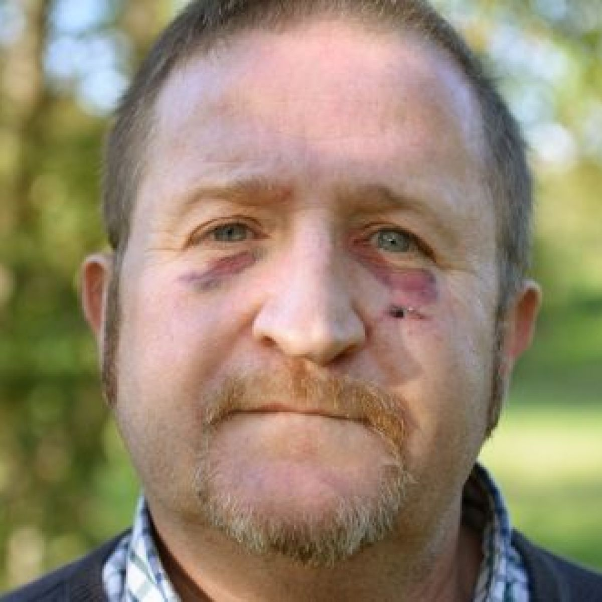 I was victim of anti-gay attack in Newbridge - Councillor